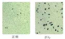 免疫抑制細胞1