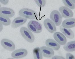 鳥マラリア
