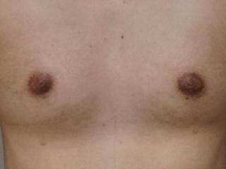 15術後11ヶ月