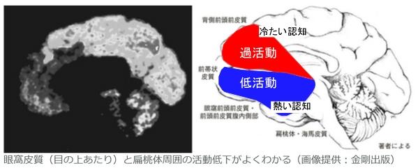 サイコパスの脳内構造