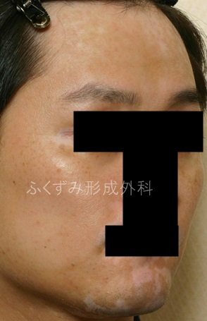 IMG_5223-blg4.jpg