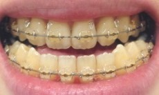 歯正面術前0505