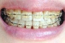 歯正面0505