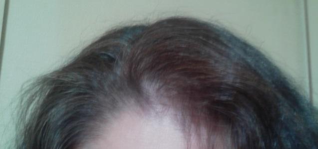 マイナチュレ 使用開始の髪 20160503