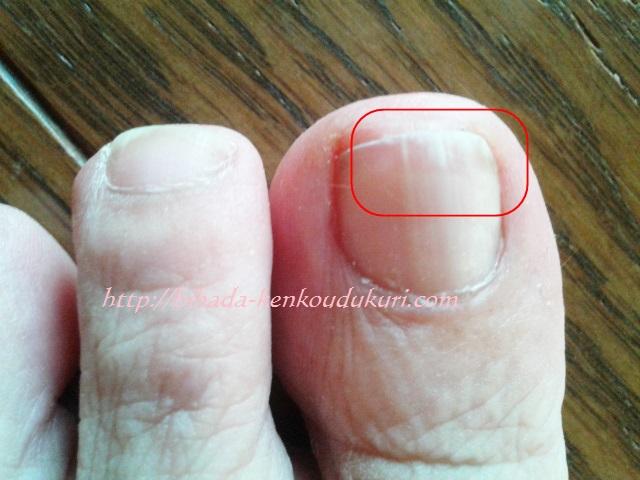 クリアネイルショット 足の指