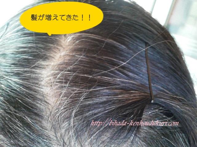 マイナチュレ 増えてきた髪 2