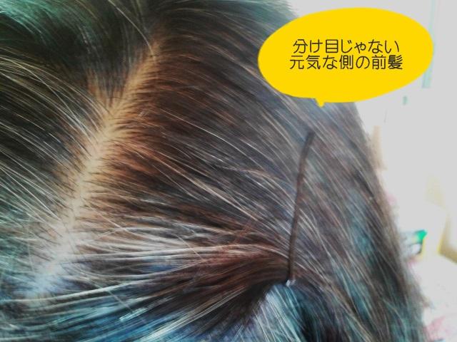 マイナチュレ 元気な方の髪の根元