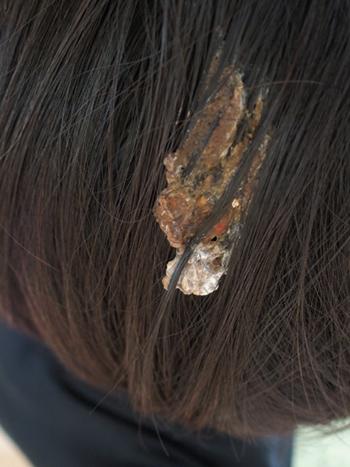 鳥の糞 髪の毛