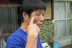 手負いとなった青木篤さん(63)
