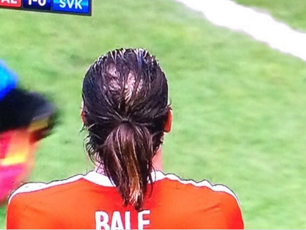 Is Gareth Bale going bald