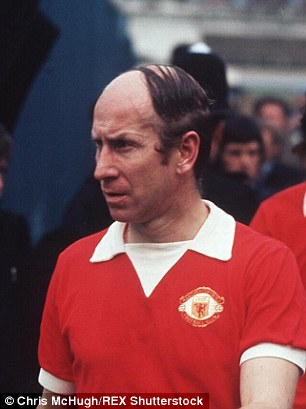 bobby charlton hair