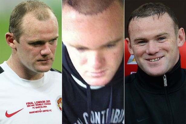 Sportsmen-Hair-Transplants_rooney.jpg