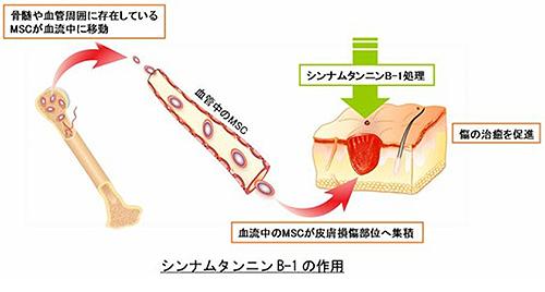 ガンダムなんかで傷口にペタッと貼るとケガが治るアレ、ついに実用化に一歩踏み出す