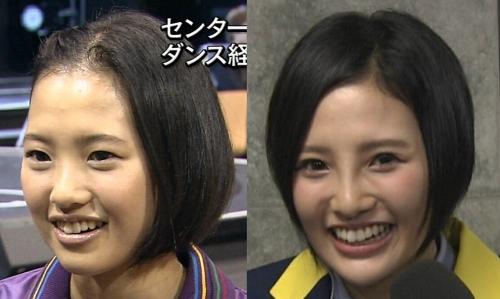 高須院長が、HKT48兒玉遥さんの写真を見て「普通の鼻に戻してあげるから来なさい。」とツイートwww4