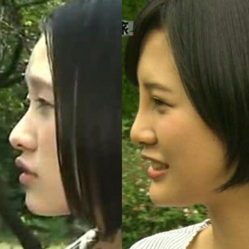 高須院長が、HKT48兒玉遥さんの写真を見て「普通の鼻に戻してあげるから来なさい。」とツイートwww9