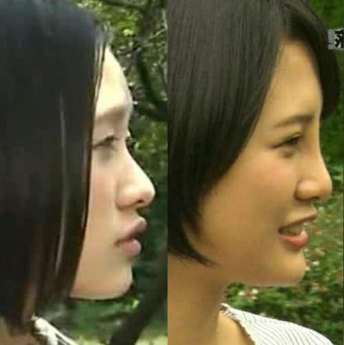 高須院長が、HKT48兒玉遥さんの写真を見て「普通の鼻に戻してあげるから来なさい。」とツイートwww11