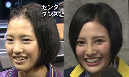 高須院長が、HKT48兒玉遥さんの写真を見て「普通の鼻に戻してあげるから来なさい。」とツイートwww13