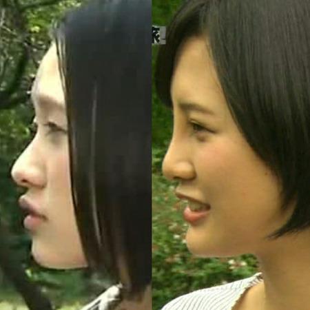 高須院長が、HKT48兒玉遥さんの写真を見て「普通の鼻に戻してあげるから来なさい。」とツイートwww12