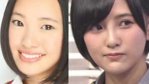 高須院長が、HKT48兒玉遥さんの写真を見て「普通の鼻に戻してあげるから来なさい。」とツイートwww14