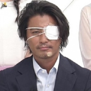 【画像】TOKIO山口達也、眼帯姿で「ZIP!」出演 自転車転倒で顔面負傷