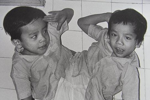 日本 結合 双生児
